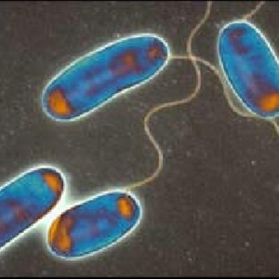 Progetto Controllo Delle Colonie Di Legionella In Impianti Idrici